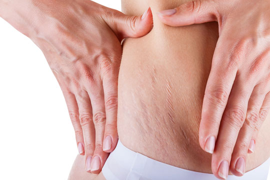 Body treatments. Scar and stretch marks removal