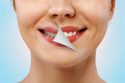 Lip augmentation treatment in Weston