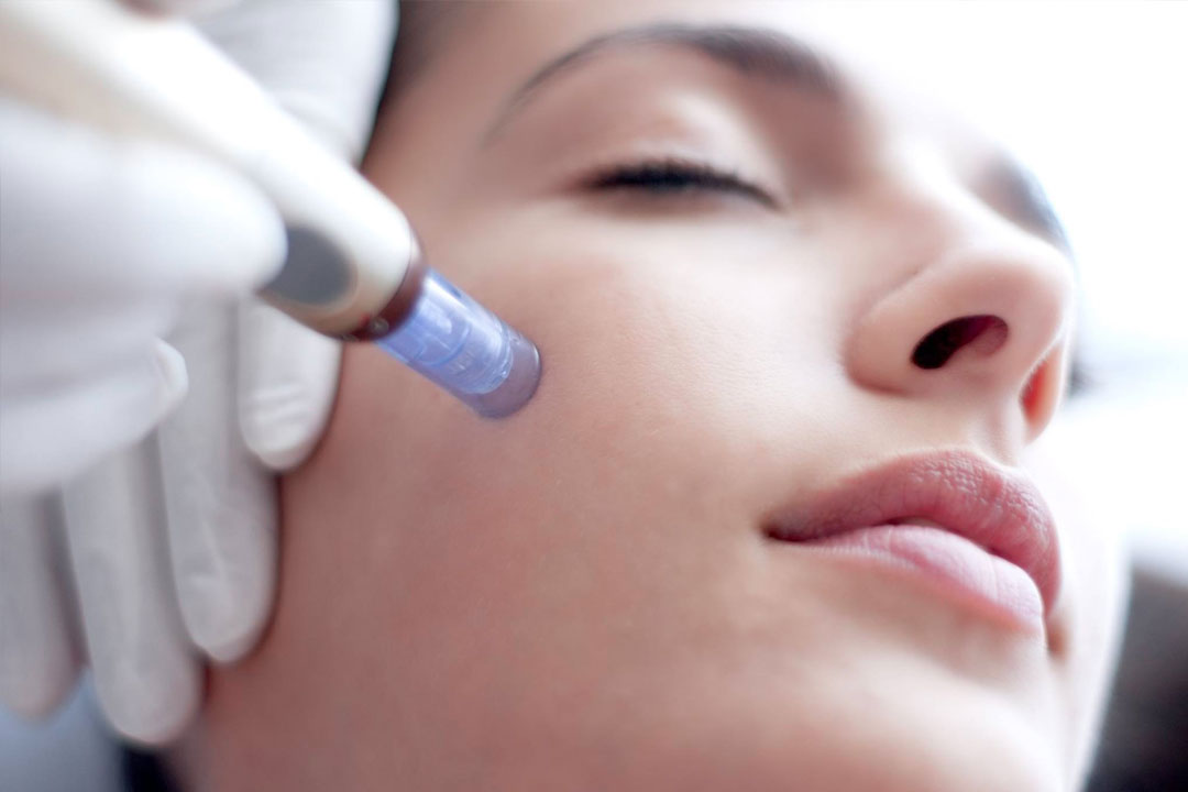 Mesotherapy treatments in Weston